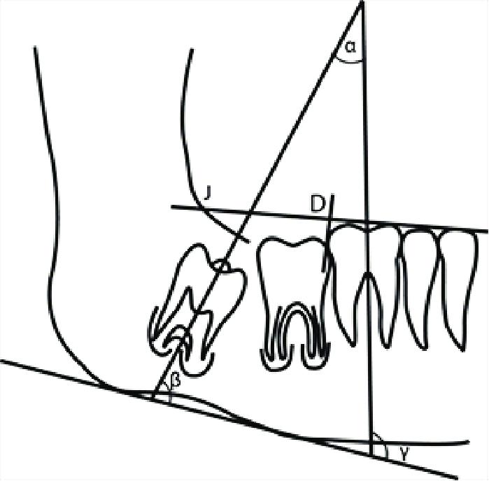 Angle Drawing