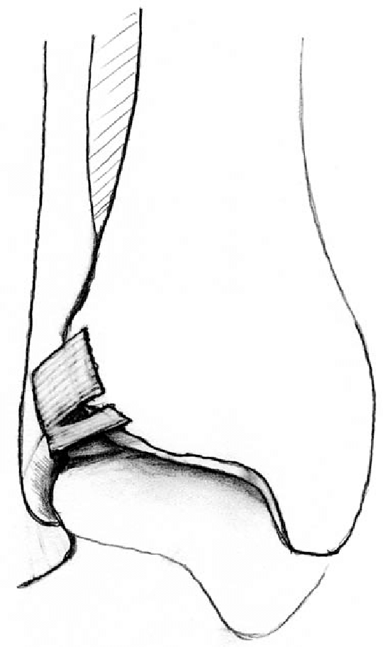540x913 line drawing of an anterior inferior tibiotalar ligament tear