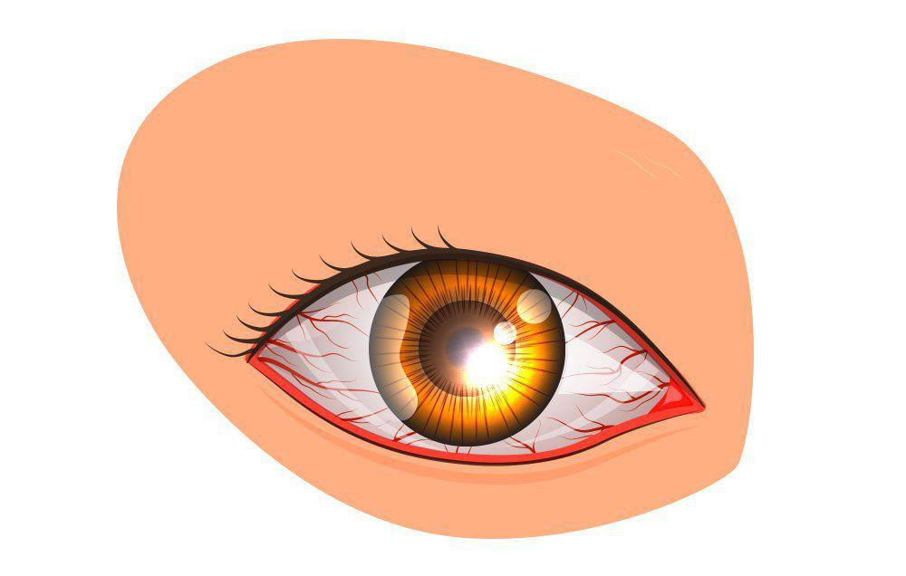 Bleeding Eye Drawing