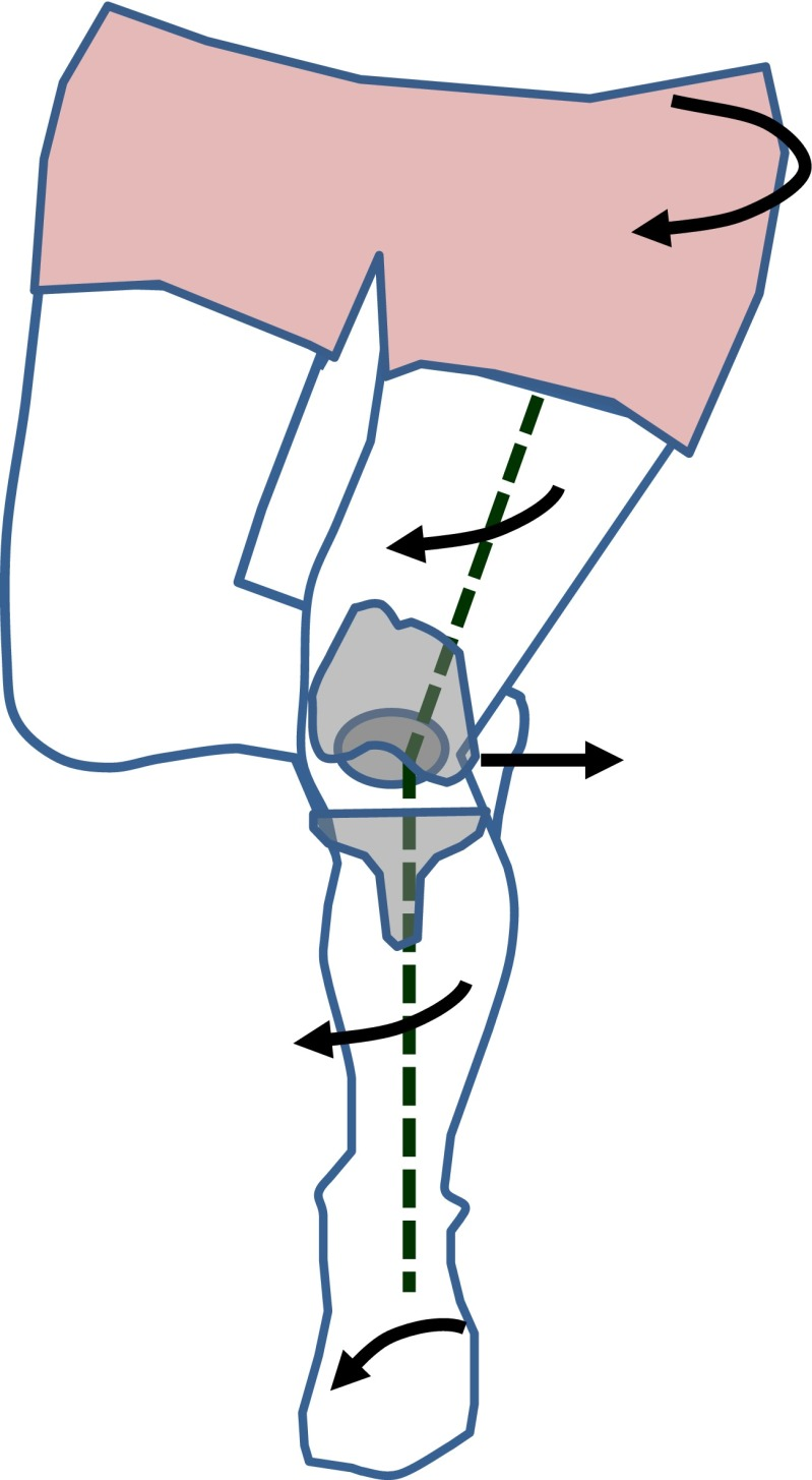 799x1455 schematic drawing of dynamic valgus in patients with tka