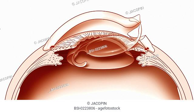 640x370 Drawing Visual Cataract Stock Photos And Images Age Fotostock
