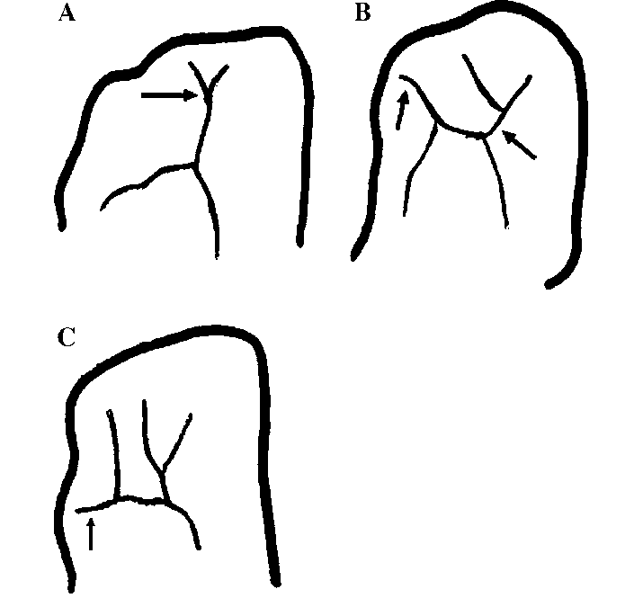 715x675 drawings of the anterior end patterns of the orbital sulci
