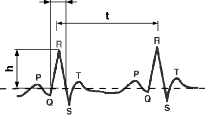 419x239 ecg components p wave, qrs complex, and t wave download