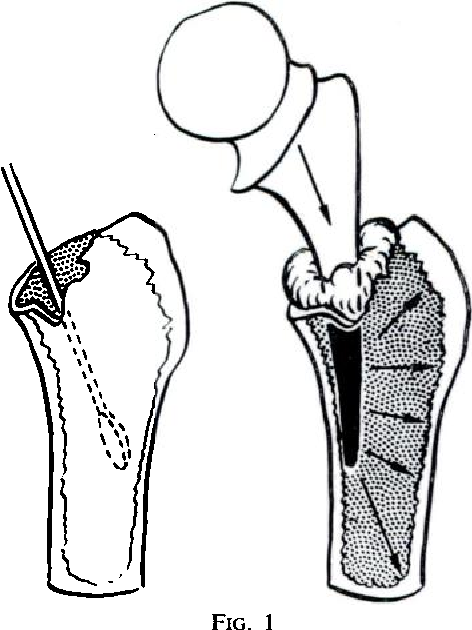 472x630 anchorage of the femoral head prosthesis to the shaft of the femur