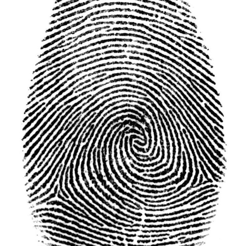 3000x3000 Fingerprint Less Lady Sees Her Fingerprints For The First Time