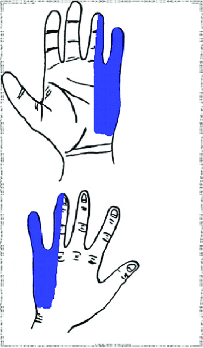 409x701 Drawing Of The Front And Back Of The Hand Showing Symptom