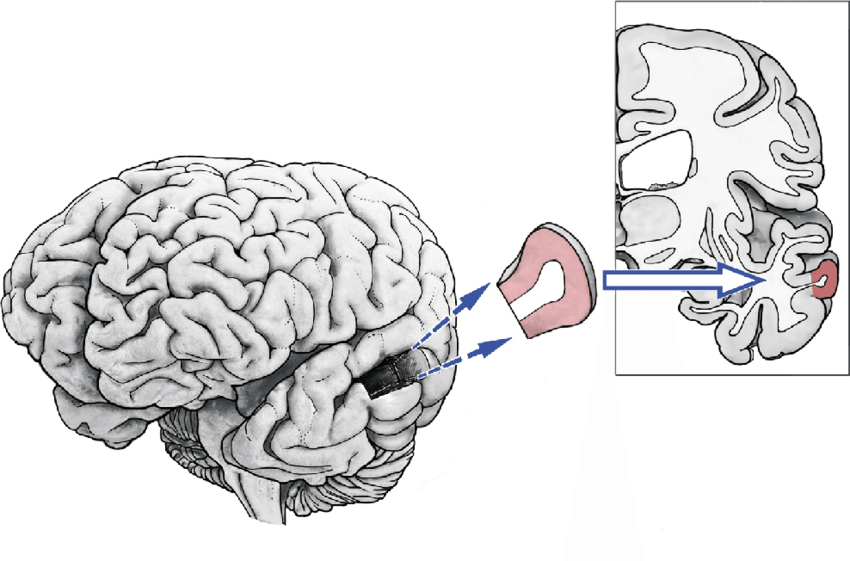 850x561 Schematic Drawing Of The Dissected Human Brain Tissue Probes