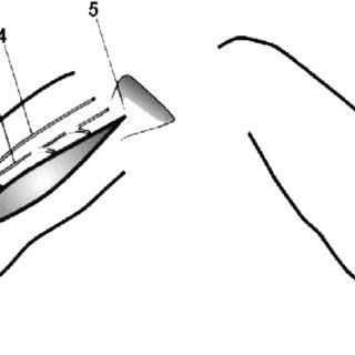 320x320 Schematic Drawing Of The Technique Of The Transfer Of The Gracilis