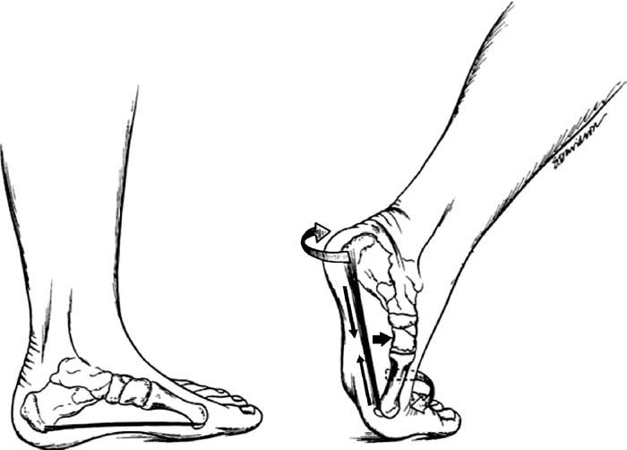 Running Figure Drawing