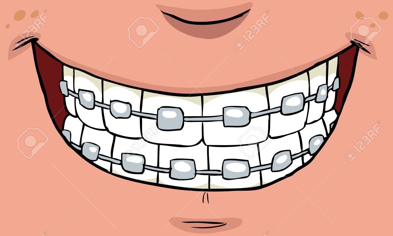 1300x782 1,796 Braces Smile Cliparts, Stock Vector And Royalty Free Braces