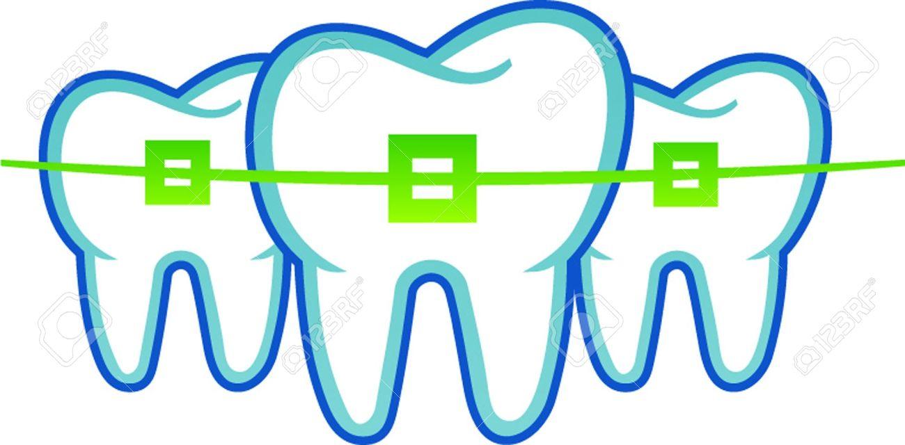 1300x640 Teeth Clipart Brace Clipart