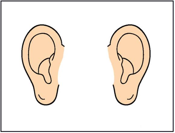 580x442 Animal Cartoon Ears Clipart