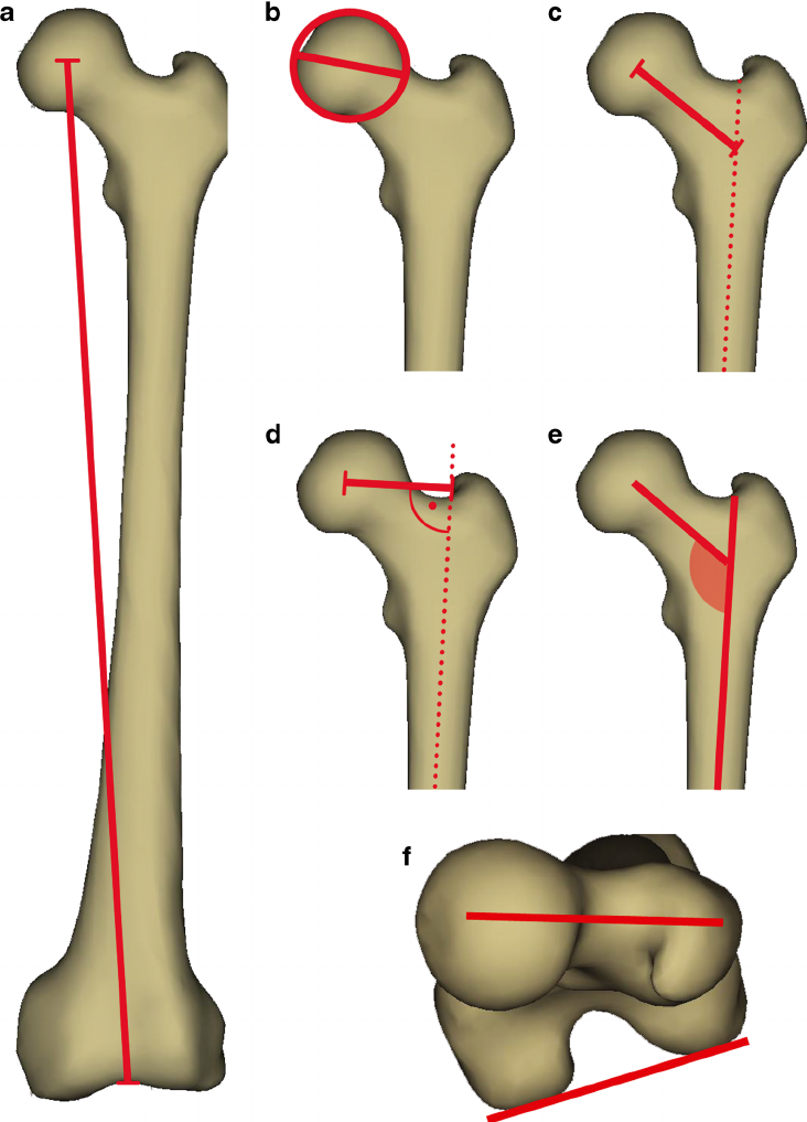 732x1017 Anatomical Parameters Of The Femur Evaluated In The Study (Based