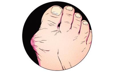 400x254 How To Fix Your Gross Feetu200b Men's Health
