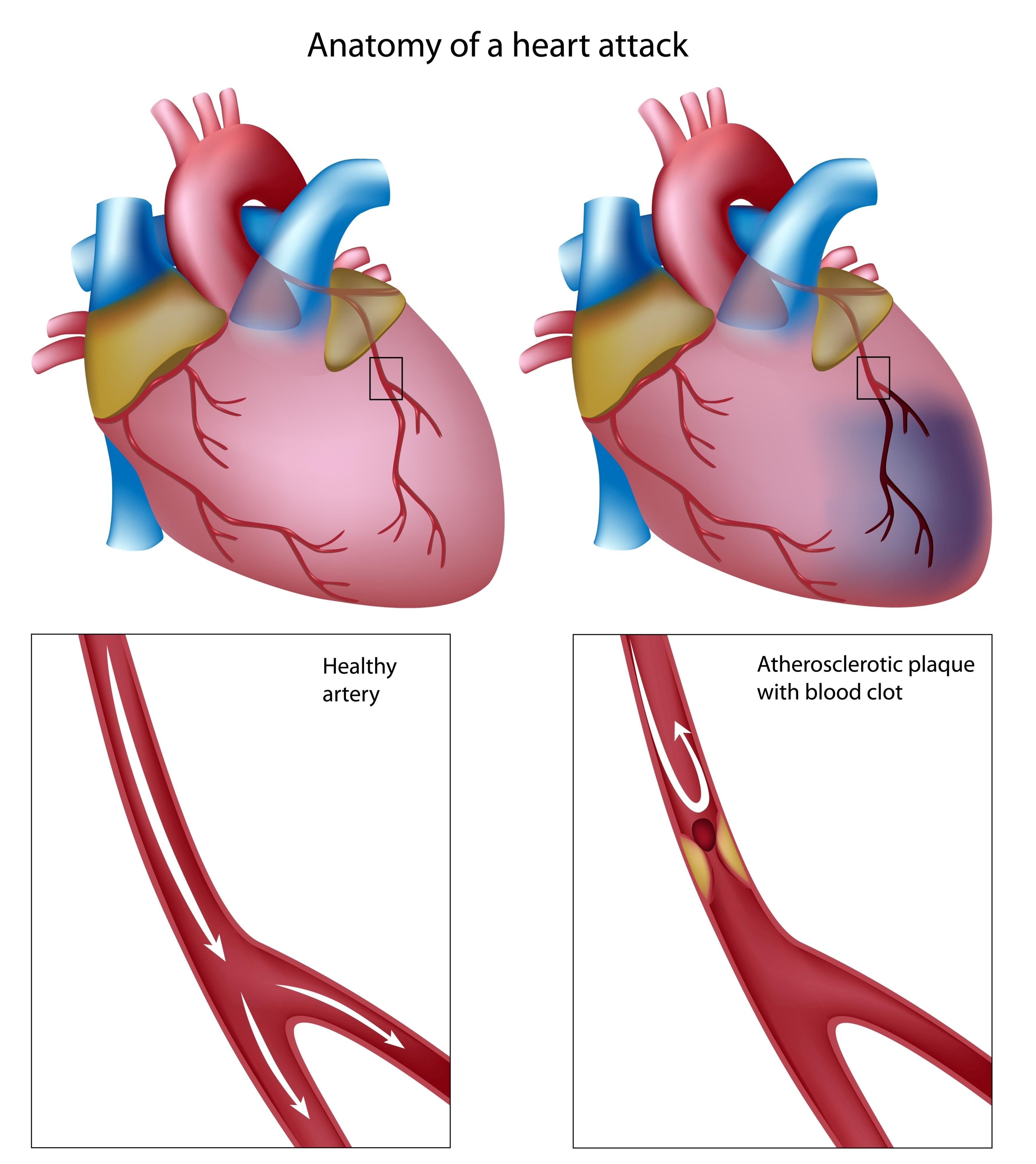 3559x4000 Causes Heart Disease Clip Art Cliparts