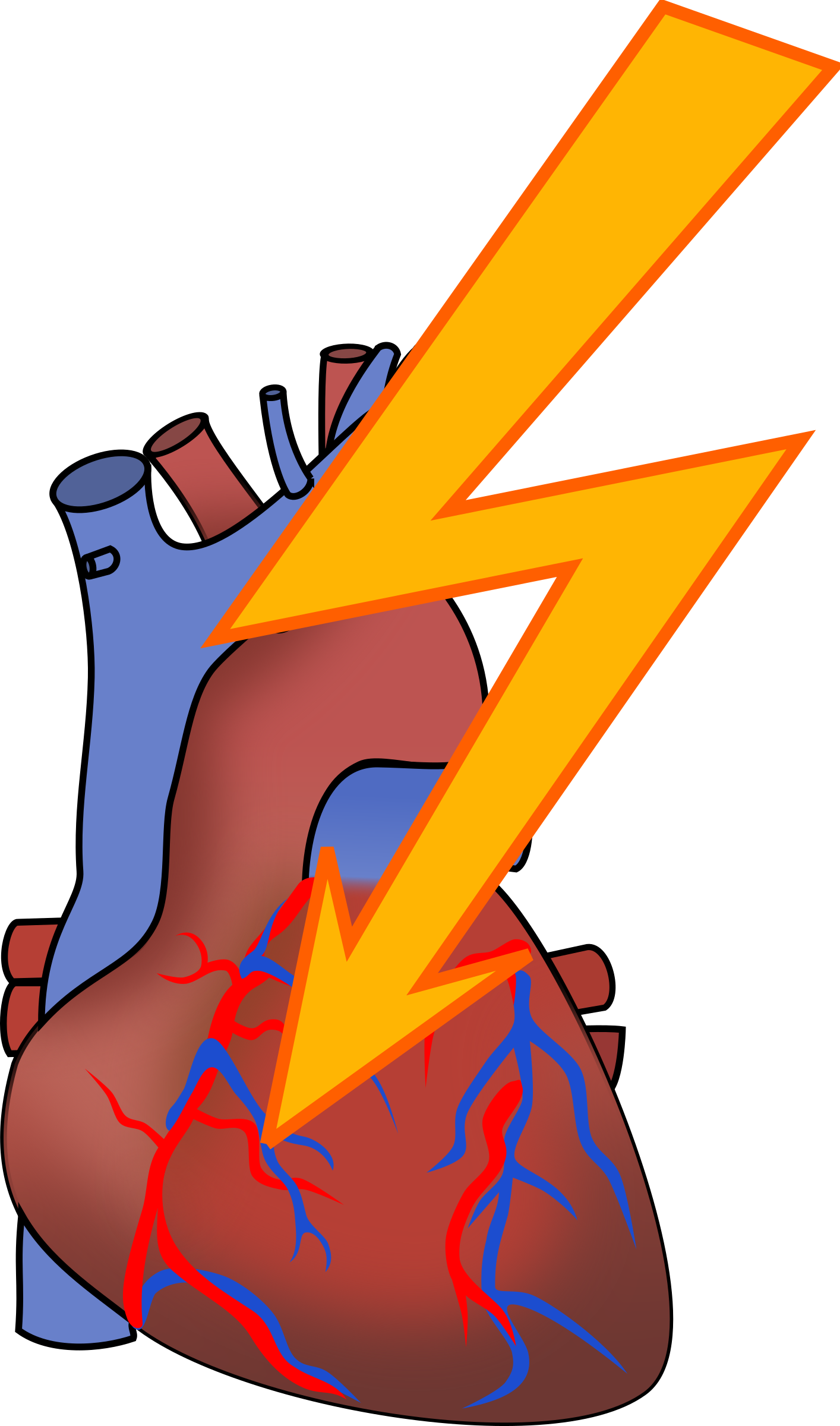 1414x2400 Causes of Heart Disease Clip Art – Cliparts