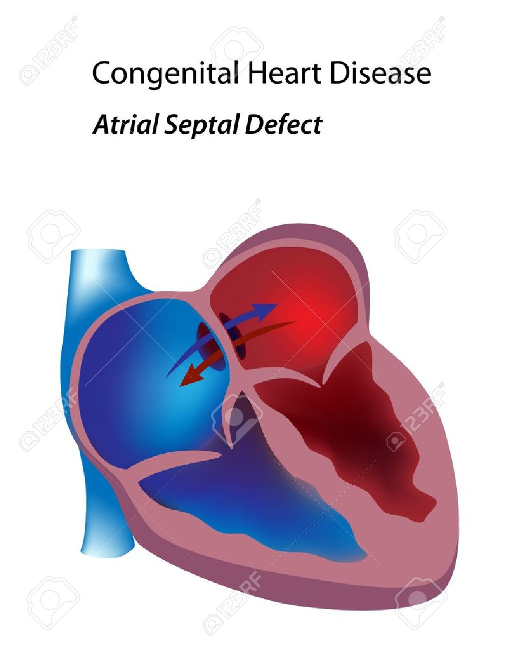 1039x1300 Congenital Heart Disease Atrial Septal Defect Royalty Free