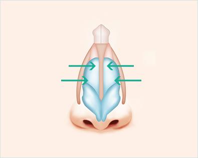 395x315 Da Plastic Surgery