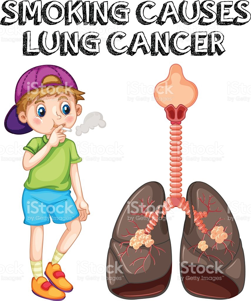 855x1024 Cigarette Clipart Lung