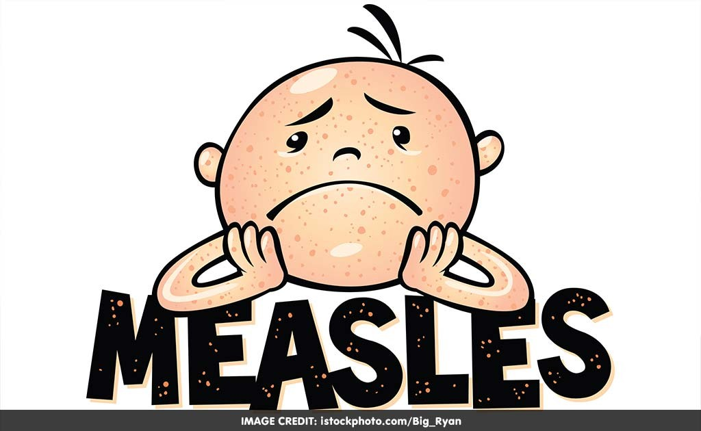 1024x630 Shoot Clipart Measles