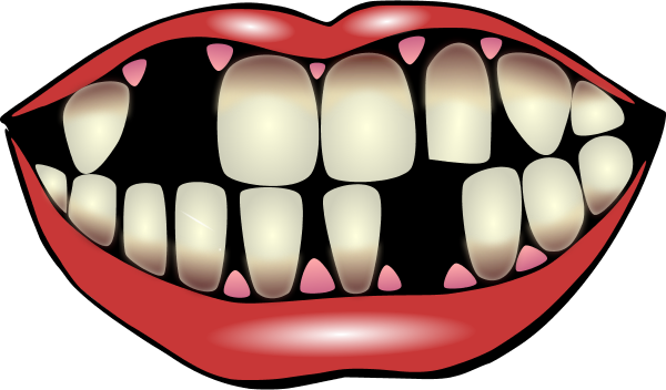 600x352 Mouth With Missing Teeth Clip Art