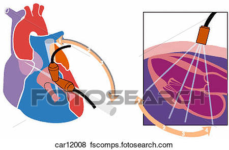 450x294 Stock Illustration Of Schematic Illustration Showing Ultrasound