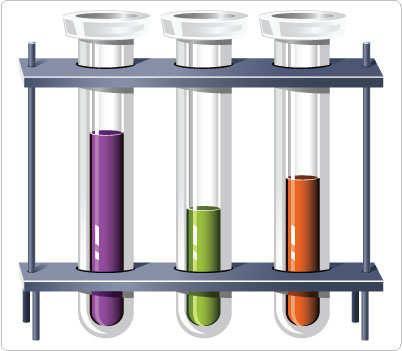 402x351 Test Tube Clip Art Medical Cliparts Tube Clips