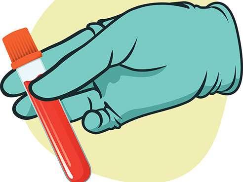 492x369 Blood Clipart Blood Work