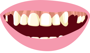 385x228 Clip On Veneers Snap In Smile No Dentist No Drills No Pain