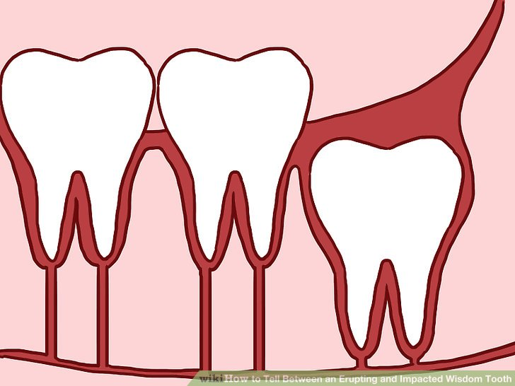 728x546 How To Tell Between An Erupting And Impacted Wisdom Tooth 9 Steps